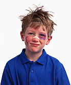 beaten_up_kid